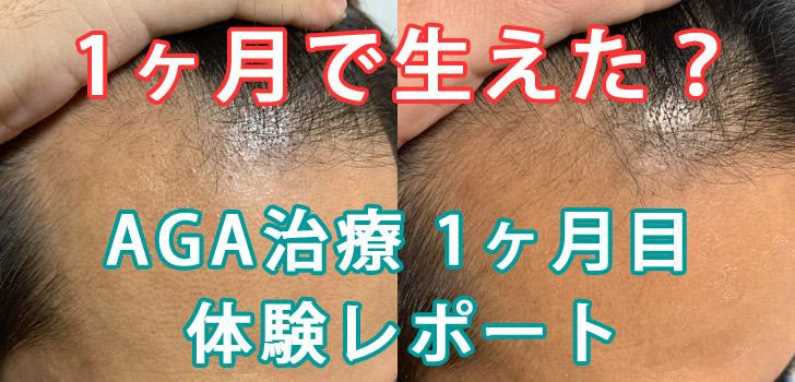 30代40代男性向け【AGA治療1ヶ月目】