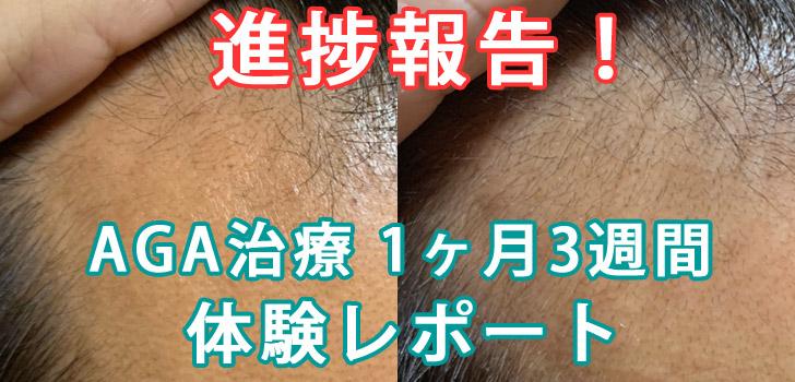 薄毛・AGA治療