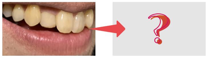 歯のbefore