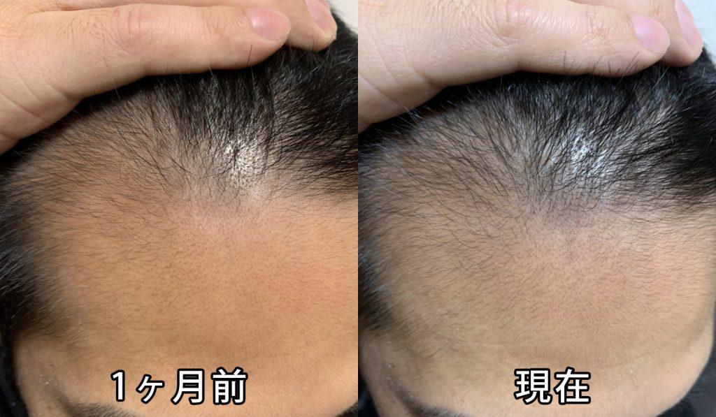 1ヶ月前と現在の頭皮