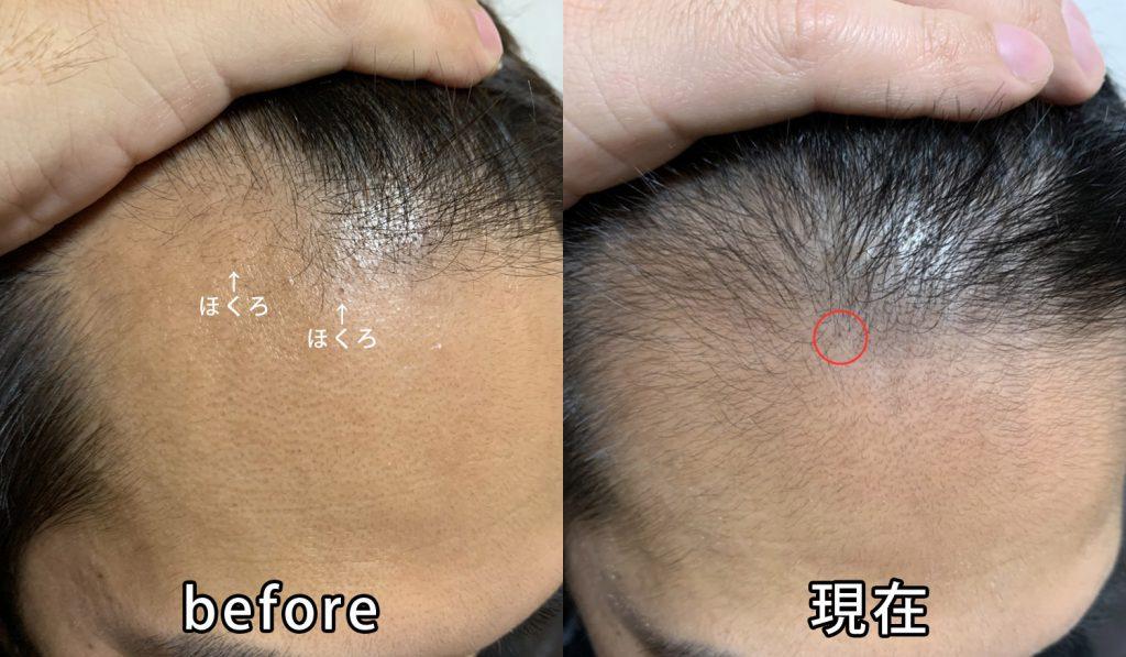 AGA治療開始前と現在の頭皮