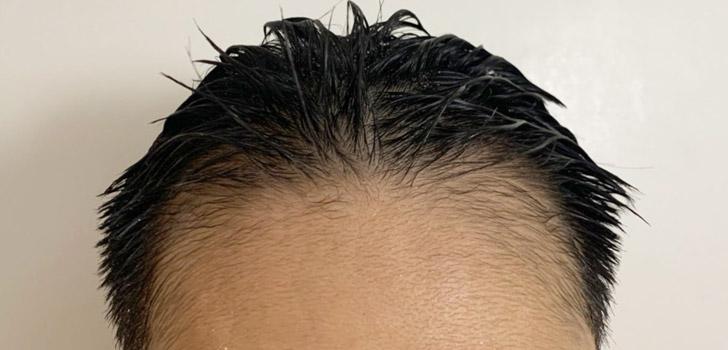 シャンプー後の頭皮