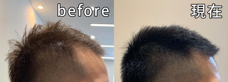 AGA治療開始前からの比較