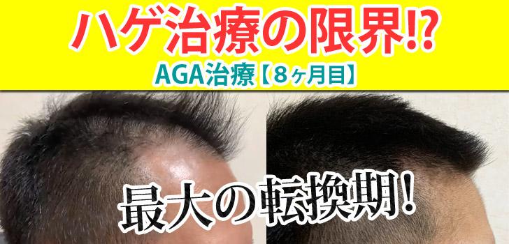 AGA治療8ヶ月