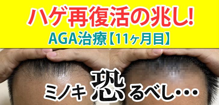 AGA治療11ヶ月