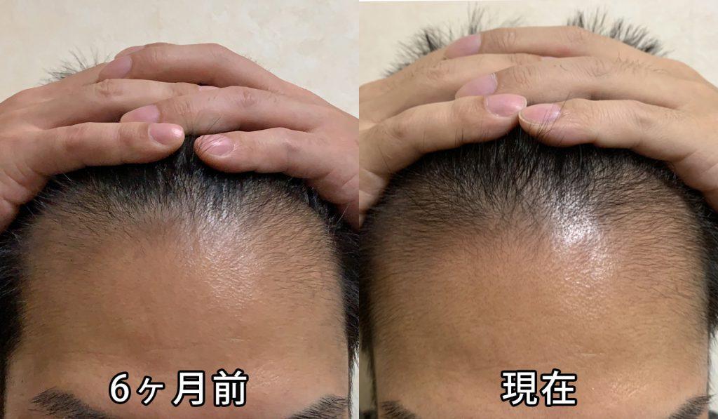 AGA治療6ヶ月前との頭皮の比較