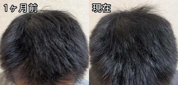 先月と現在の頭頂部の比較