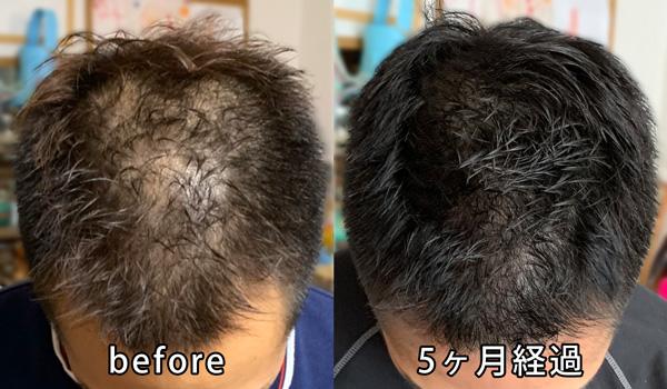 AGA治療5ヶ月経過