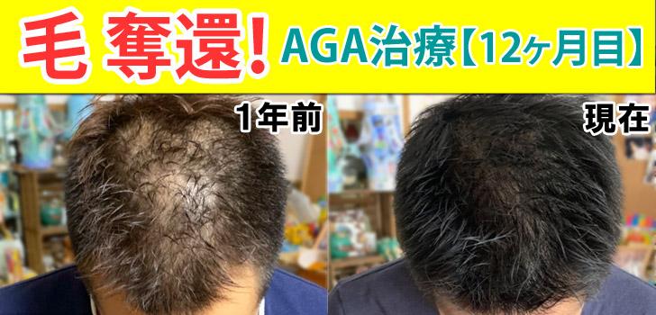 AGA治療1年ビフォーアフター