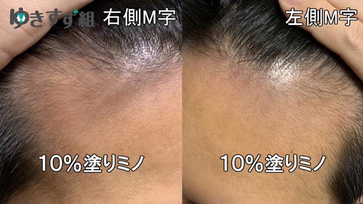 ミノキシジル10%