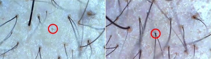 マイクロスコープで見る薄毛