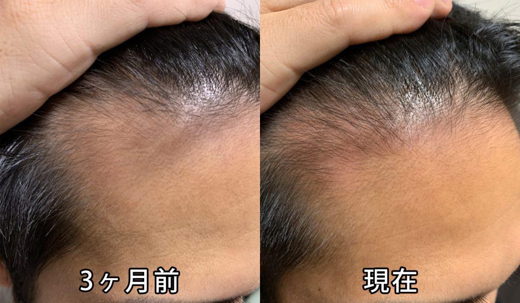 3ヶ月前との頭皮の比較