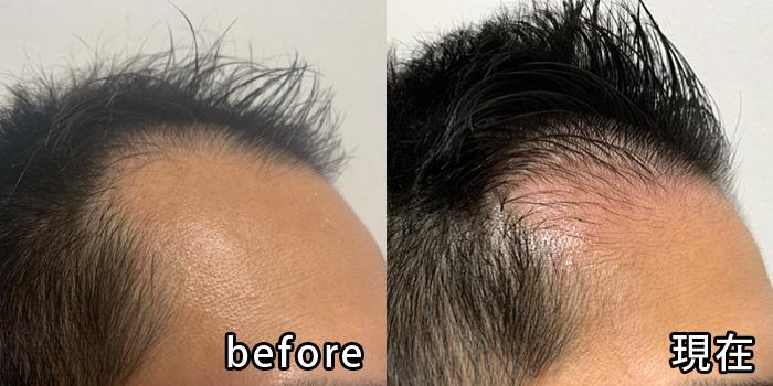 ミノキシジル塗布後の比較