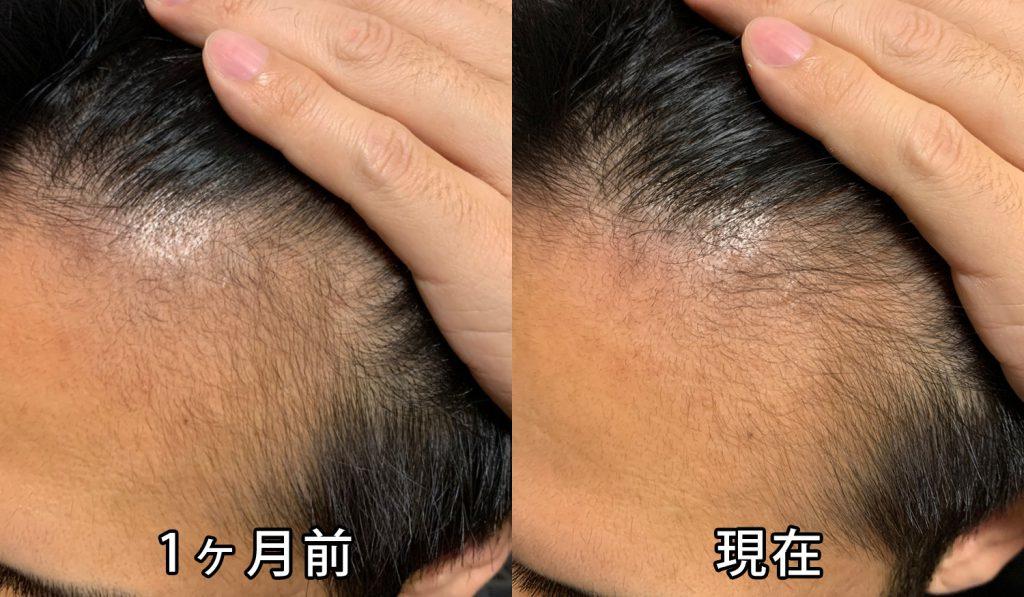 1ヶ月前との頭皮の比較